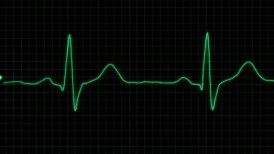 real form cardiogram with alpha loop - motion graphic