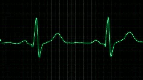 real form cardiogram with alpha loop - stock footage