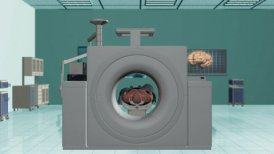 MRI Hospital, Camera Fly from Brain Scan - editable clip, motion graphic, stock footage