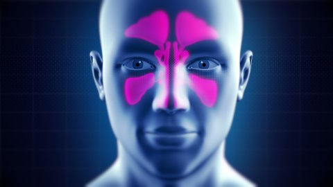 Nasal Sinuses Infection Cured by Medicine - stock footage