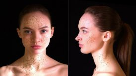 Dry Skin. Girl with dry skin turns into a beautiful woman.