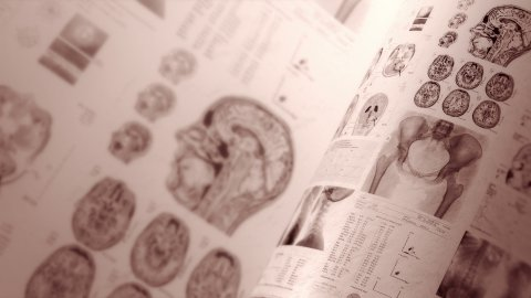 Medical, clinical background in sepia. CT scans, X-ray computed tomography. - stock footage