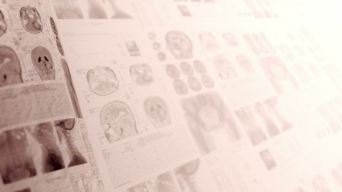 CT scans, X-ray computed tomography. Medical, clinical background in sepia. - stock footage