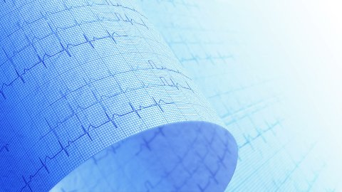 Hospital, electrocardiogram, ECG medical background. LOOP. - stock footage