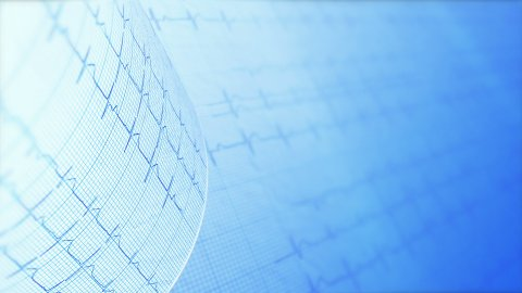 Heart rate, electrocardiogram. 4k, Ultra HD and Full HD versions. - stock footage