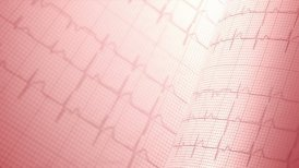 Heart rate, electrocardiogram, LOOP. - motion graphic