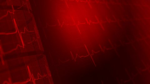 ECG medical background - stock footage