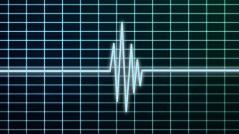 EKG scanner - stock footage