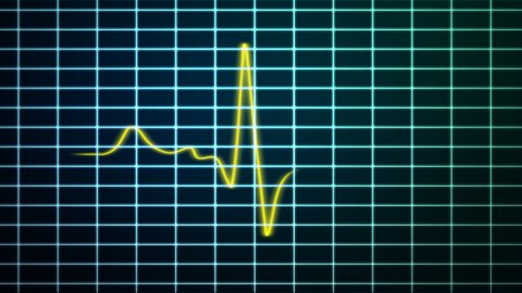 EKG scanner with red and yellow stroke waves - stock footage
